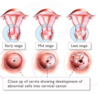 Cervical cancer.jpg